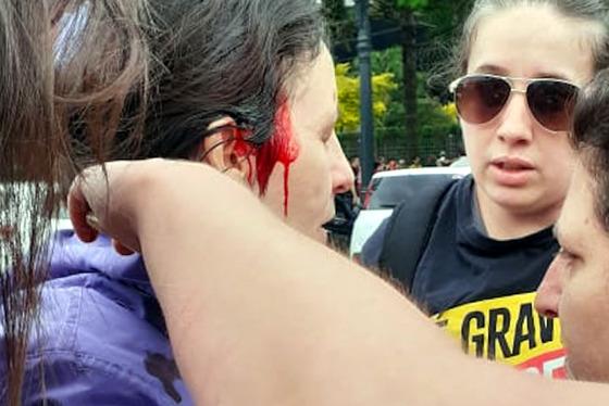 Professores ficam feridos em confronto com a polícia e sessão da ALEP é suspensa